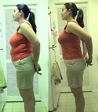weight loss injections